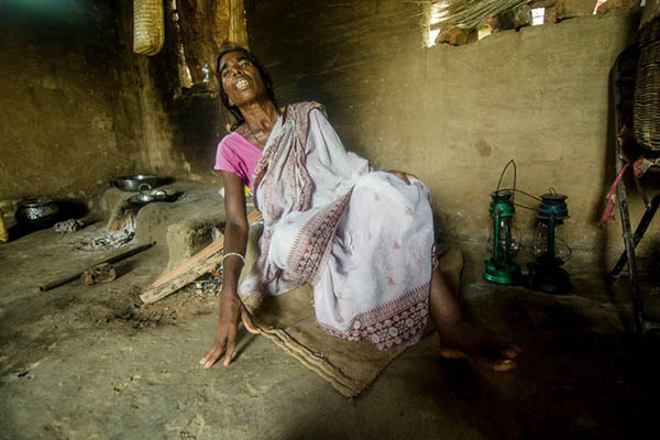 A 72-year-old woman accused of witchcraft had her ankles broken to prevent her from working in the fields. Sindhuja Parthasarathy—AFP