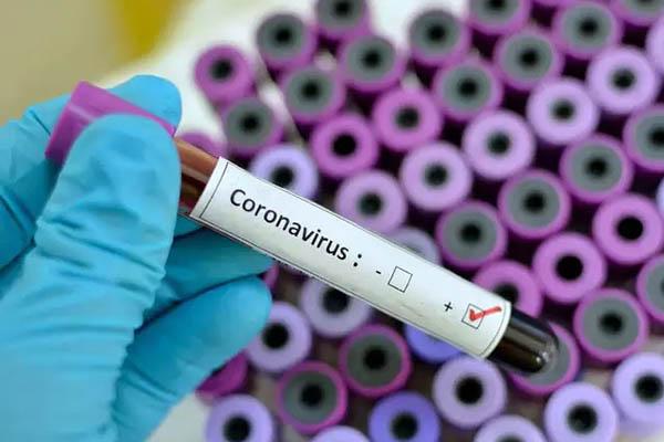 Coronavirus test results
